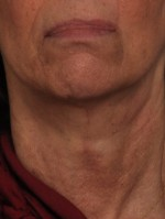 Male Neck Lift