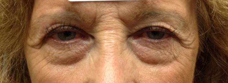 Before Eyelid Surgery Photo of Eyes